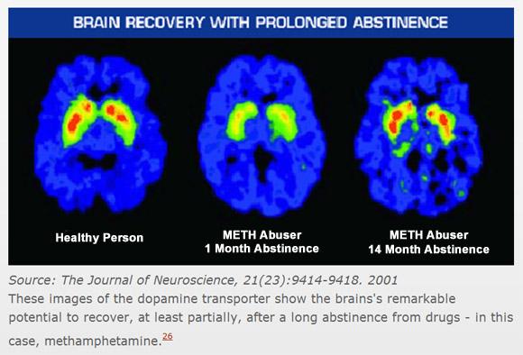 methamphetamine and brain function essay